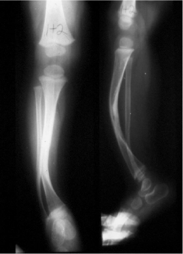https://upload.orthobullets.com/topic/4056/images/tibial bowing xray - courtesy Miller_moved.png