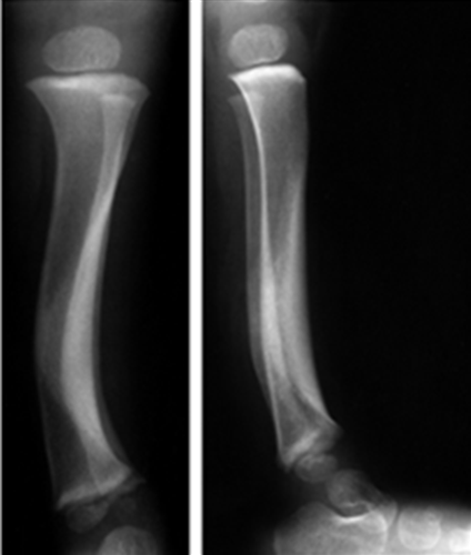 https://upload.orthobullets.com/topic/4057/images/posteriomedial tibial bowing xray.jpg