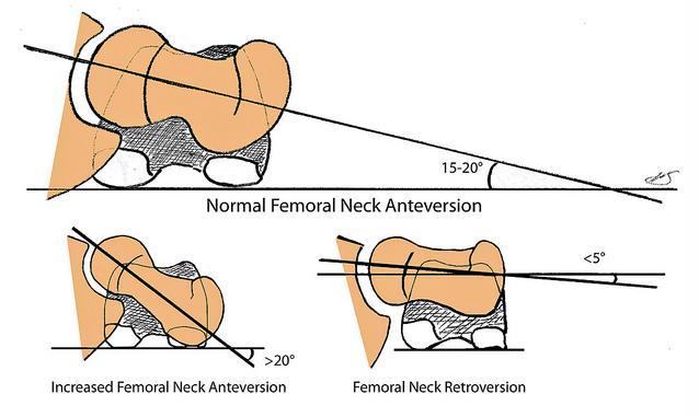Femoral Anteversion - Pediatrics - Orthobullets
