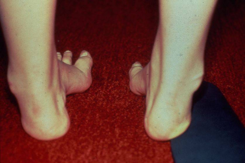 https://upload.orthobullets.com/topic/4063/images/Colman block test - flexible hindfoot - courtesy Miller_moved.png