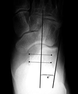 https://upload.orthobullets.com/topic/4063/images/talocalcaneal.jpg