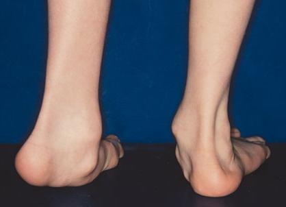 Equinovalgus Foot Pediatrics Orthobullets