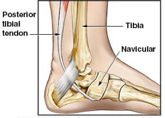 Extra bone in foot causing pain dating