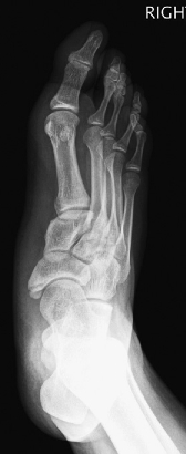 Accessory Navicular Pediatrics Orthobullets Type 2 accessory navicular with mild degenerative change in subcortical edema across the synchondrosis. accessory navicular pediatrics