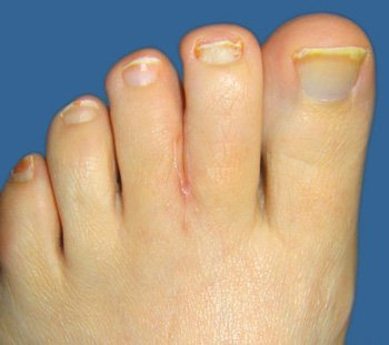 https://upload.orthobullets.com/topic/4077/images/webbed_toes_after.jpg