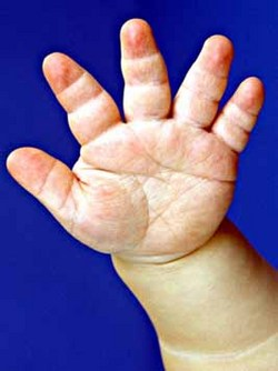 https://upload.orthobullets.com/topic/4094/images/achondroplasia trident hand clinical photograph.jpg