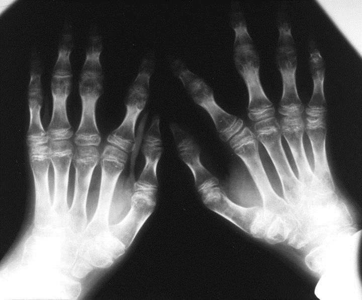 https://upload.orthobullets.com/topic/4098/images/kniest_hand.jpg