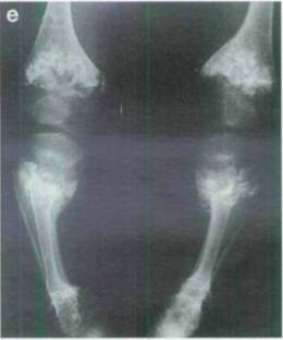 https://upload.orthobullets.com/topic/4099/images/metaphyseal_chondrodysplasia_-_jansen_type.jpg