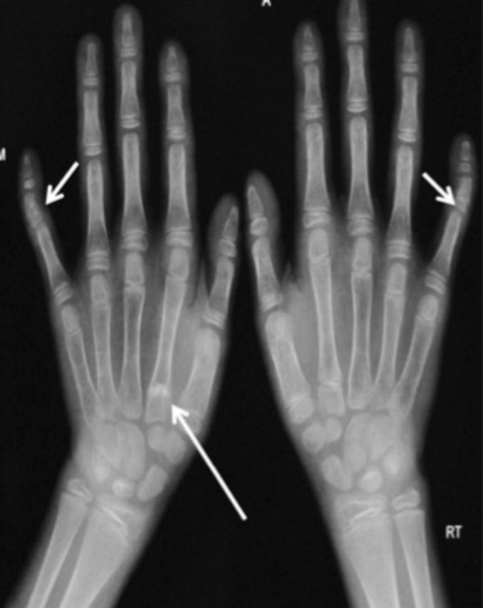 https://upload.orthobullets.com/topic/4100/images/hands.jpg