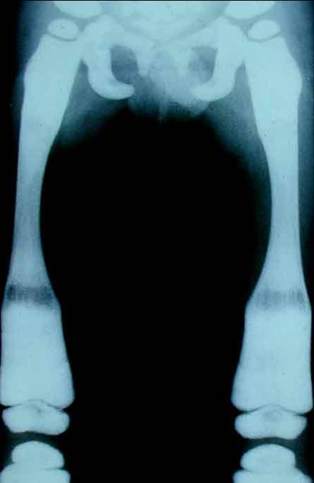 https://upload.orthobullets.com/topic/4103/images/Xray - femur - colorado_moved.jpg