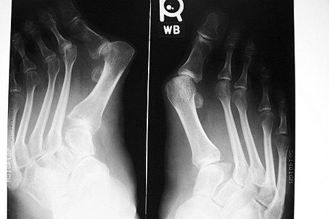 https://upload.orthobullets.com/topic/4111/images/eds radiograph bilateral feet.jpg