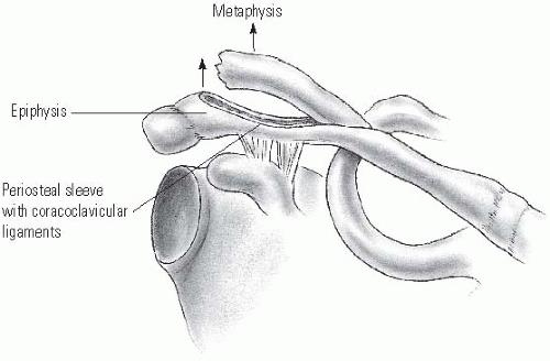 https://upload.orthobullets.com/topic/4122/images/distal_clavicle.jpg
