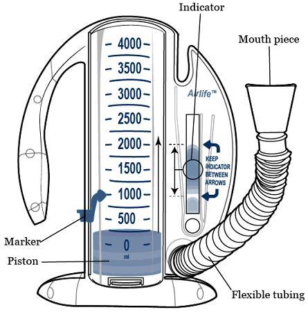 https://upload.orthobullets.com/topic/422739/images/incentive_spirometer-fig_1-en.jpg