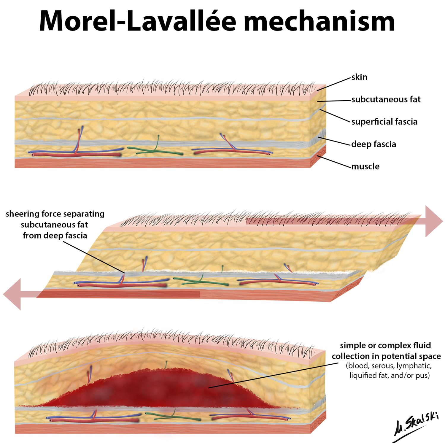 https://upload.orthobullets.com/topic/422820/images/morel-lavallee-anatomy-illustration.jpg