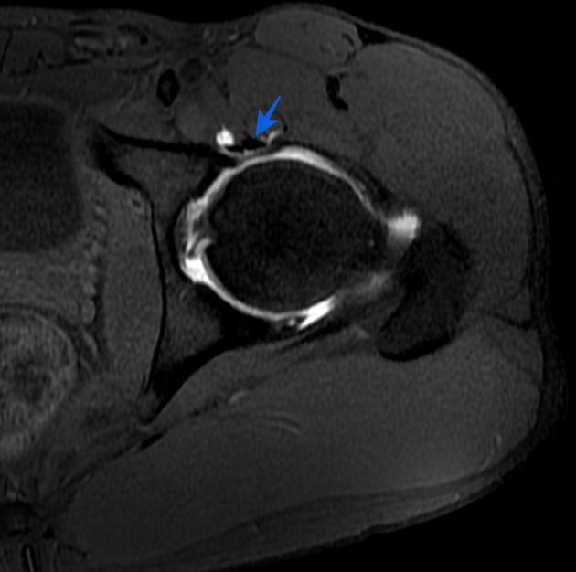 https://upload.orthobullets.com/topic/422846/images/ip_tendon.jpg