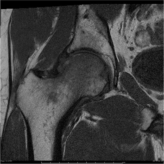 https://upload.orthobullets.com/topic/422846/images/transient_osteoporosis.jpg