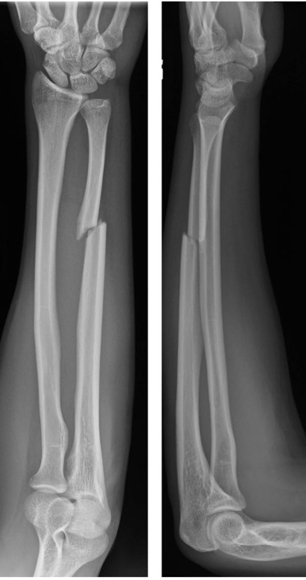 https://upload.orthobullets.com/topic/422969/images/ulnar_shaft_fracture..jpg