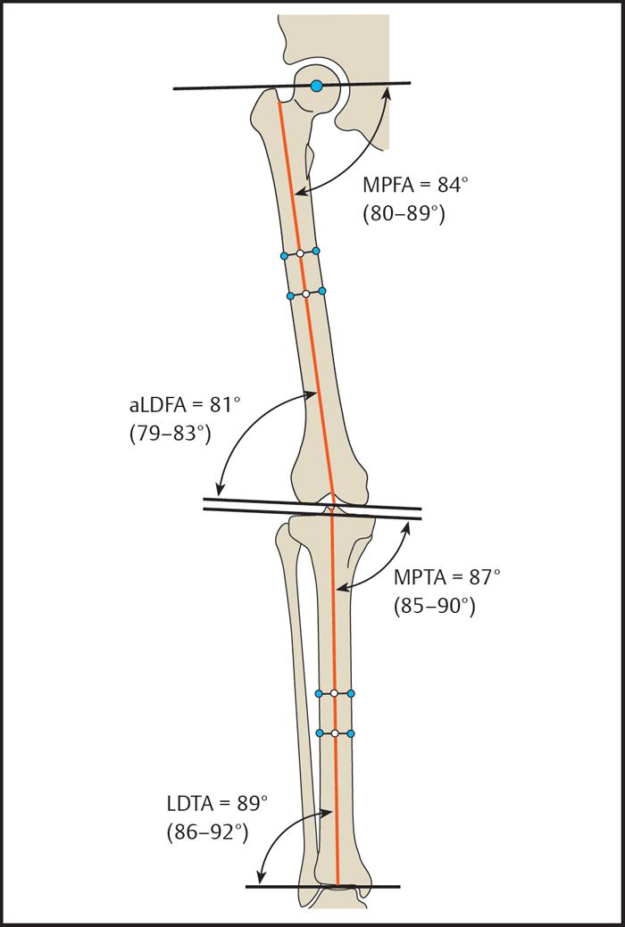 https://upload.orthobullets.com/topic/422974/images/anatomical_angles..jpg