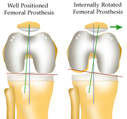 https://upload.orthobullets.com/topic/5017/images/Femoral Implant Rotation Illustration small_moved.jpg