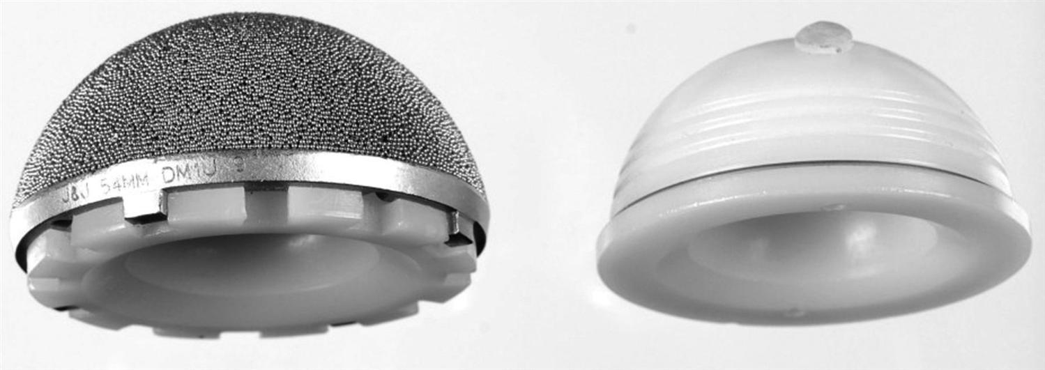 Tha Prosthesis Design Recon Orthobullets