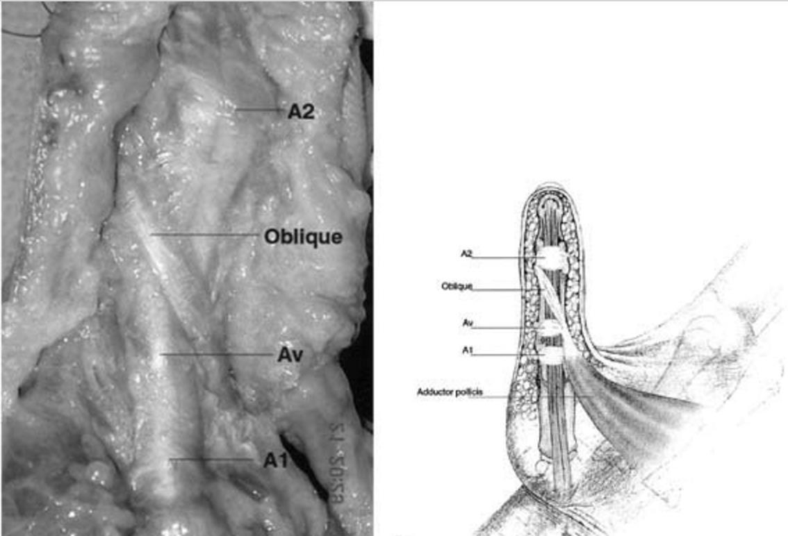 Flexor Pulley System - Hand - Orthobullets