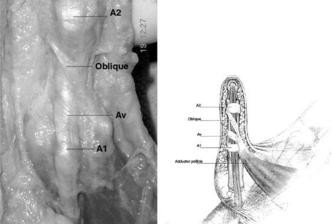 Flexor Pulley System Hand Orthobullets