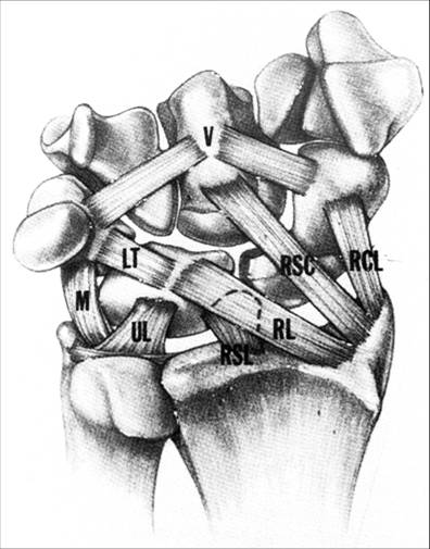 https://upload.orthobullets.com/topic/6005/images/TTC Illustration - volar wrist ligaments_moved.jpg