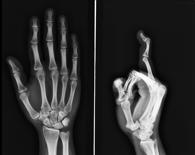 https://upload.orthobullets.com/topic/6013/images/swan_neck_deformity.jpg