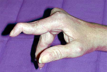 https://upload.orthobullets.com/topic/6013/images/swan_neck_deformity_2.jpg