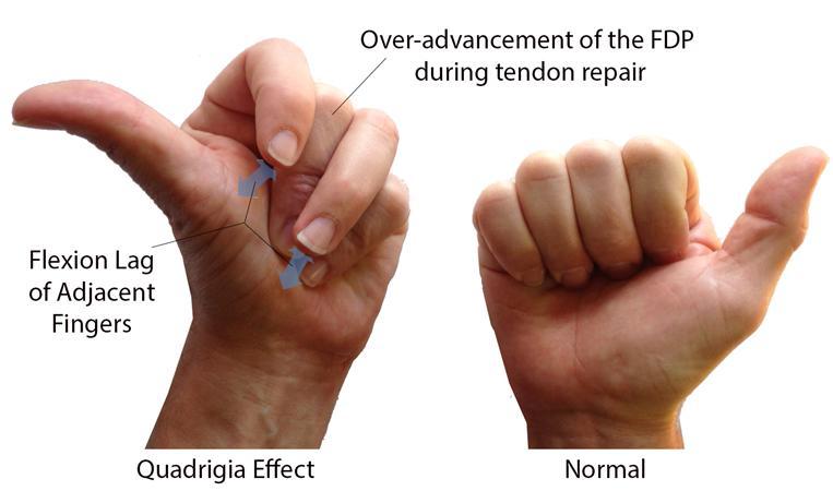 Quadriga Effect Hand Orthobullets