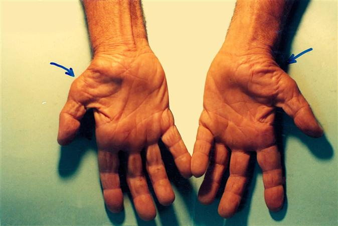 Carpal Tunnel Syndrome - Hand - Orthobullets