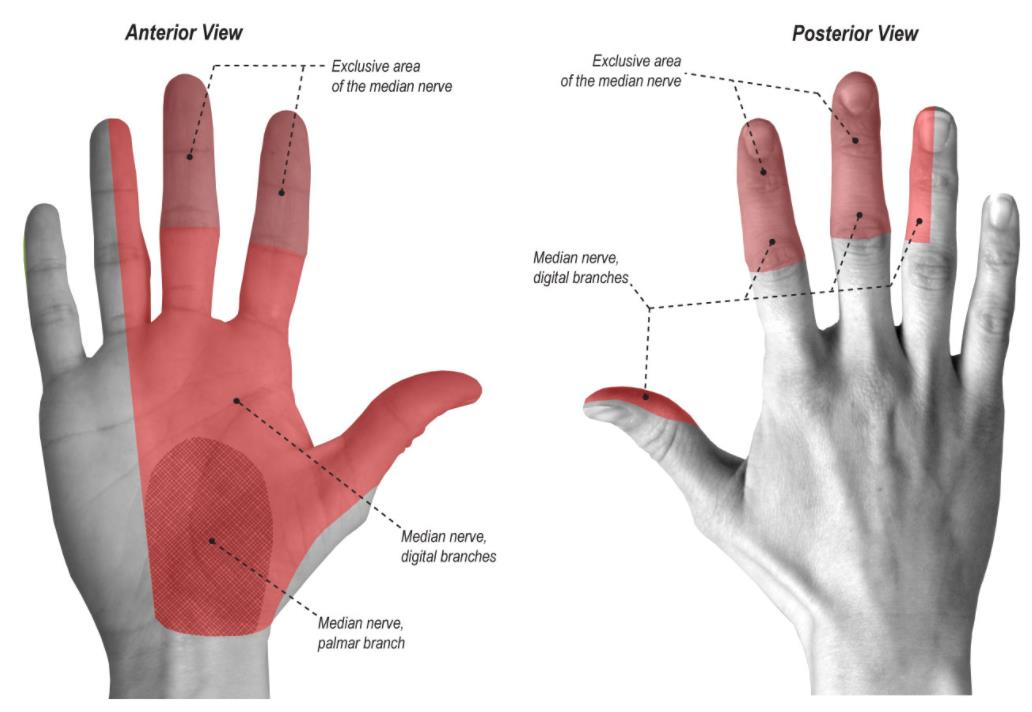 Pronator Syndrome - Hand - Orthobullets