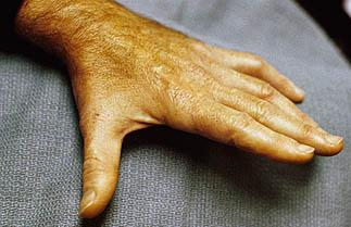 https://upload.orthobullets.com/topic/6021/images/cubital tunnel syndrome.jpg