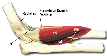 Radial Tunnel Syndrome - Hand - Orthobullets