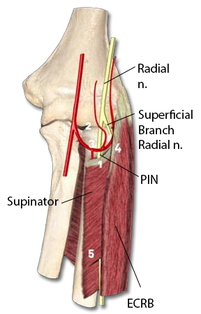 PIN Compression Syndrome - Hand - Orthobullets