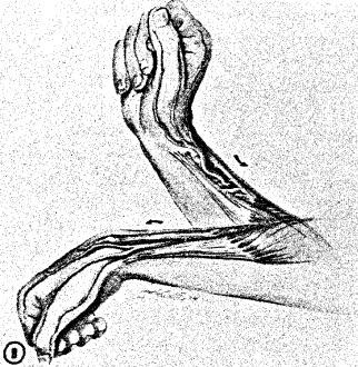 Wartenberg's Syndrome - Hand - Orthobullets