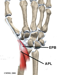 https://upload.orthobullets.com/topic/6026/images/Hand University Illustration_moved.jpg