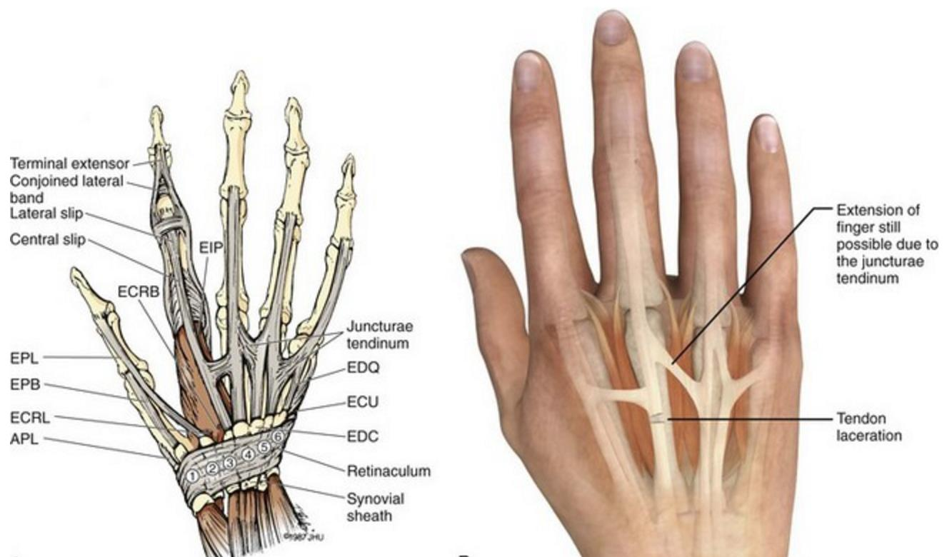 extensor tendon injuries hand orthobullets Body Tendons Diagram junctura tendinae may allow partial temporary extension by connecting with intact adjacent extensor tendons