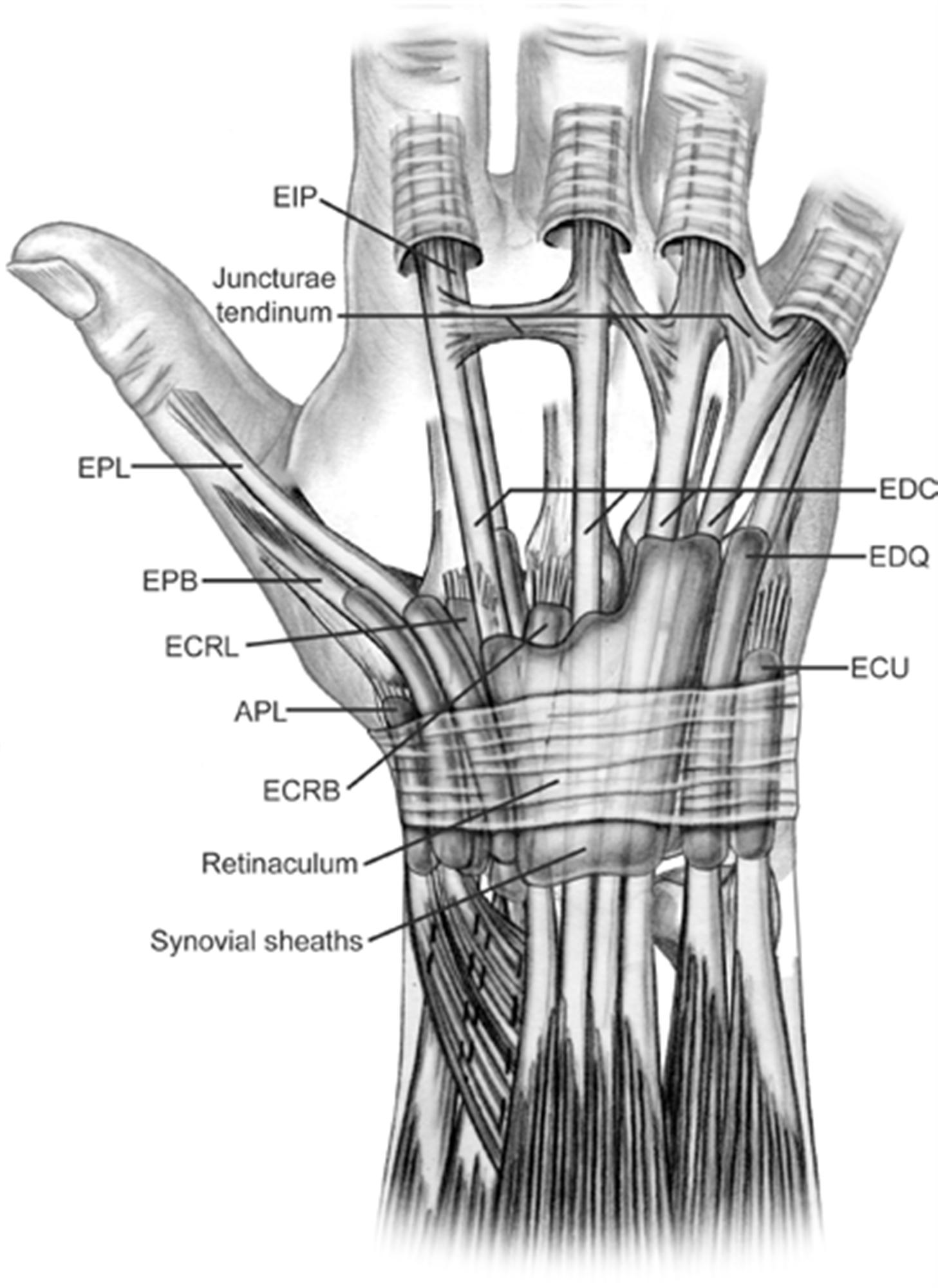 Sagittal Band Rupture (traumatic extensor tendon dislocation) - Hand ...