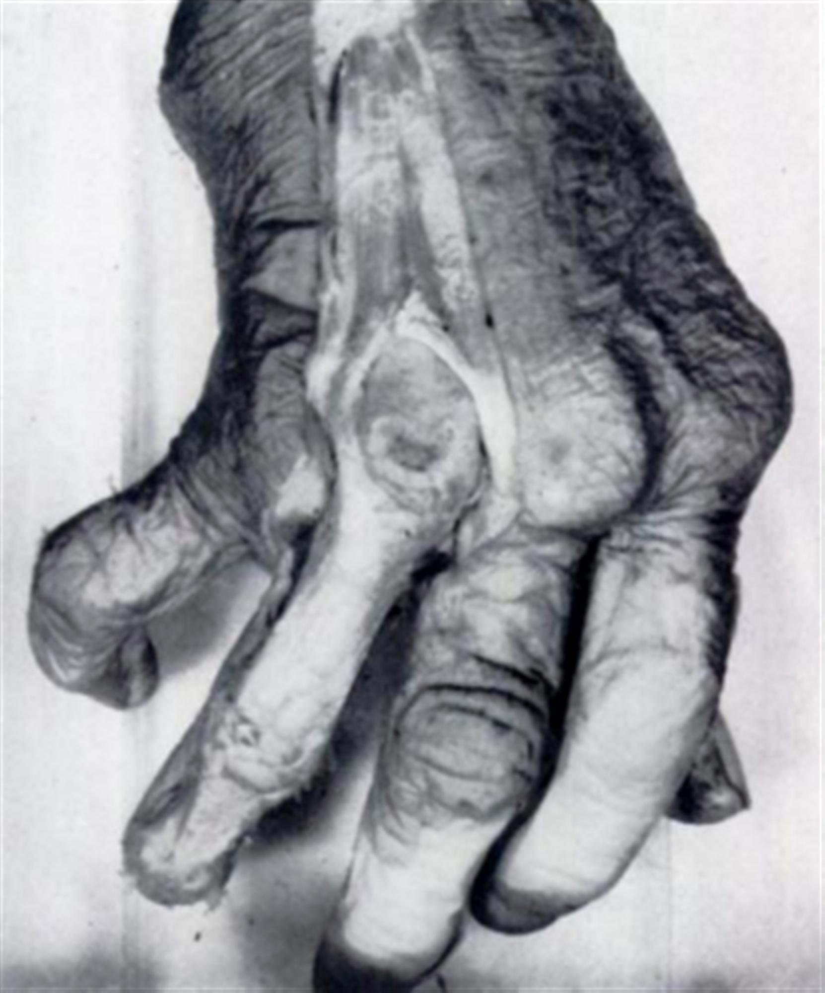 Sagittal Band Rupture Traumatic Extensor Tendon Dislocation Hand Figure 2 Skeletal Diagram Of The Index Finger Top Along With Its Inflammatory Eg Rheumatoid Arthritis