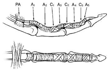 flexor tendon injuries hand orthobullets