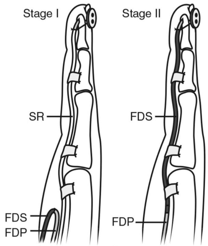 Flexor Tendon Injuries - Hand - Orthobullets