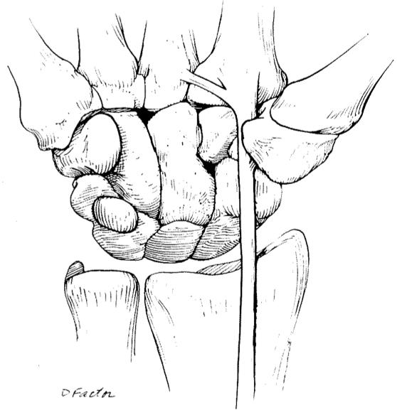 Flexor Carpi Radialis Tendinitis Hand Orthobullets