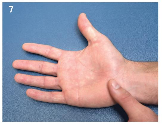 Hook of Hamate Fracture - Hand - Orthobullets