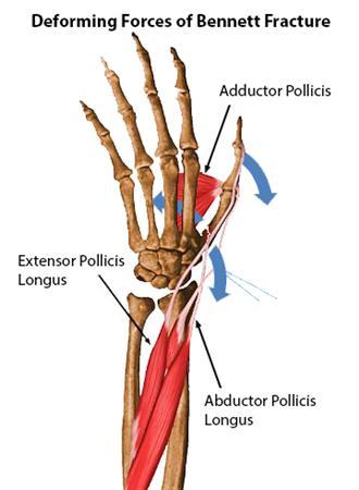 bennet fx deforming forces 2 base of thumb fractures hand orthobullets