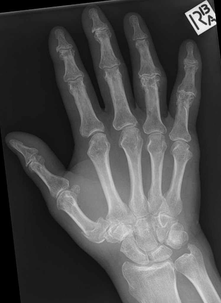 Base Of Thumb Fractures Hand Orthobullets