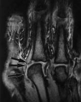 https://upload.orthobullets.com/topic/6039/images/mri collateral lig.jpg