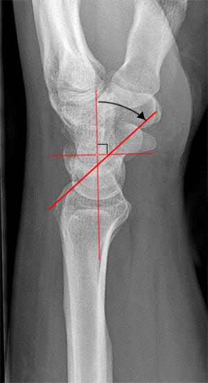gw300h551. scapholunate ligament injury & disi hand orthobullets