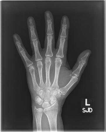 Slac Scaphoid Lunate Advanced Collapse Hand Orthobullets