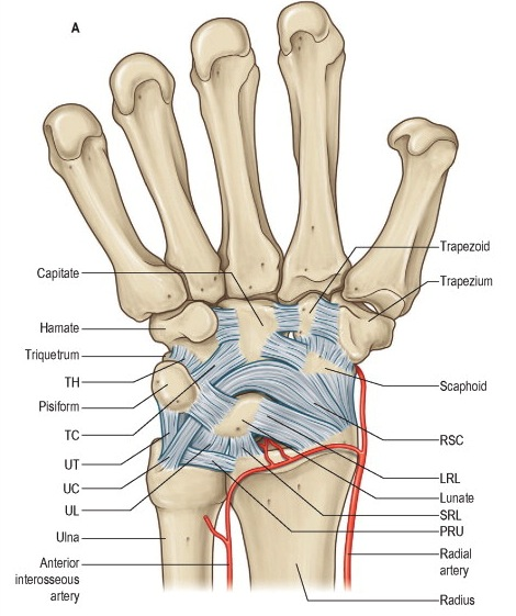 Lunate Dislocation (Perilunate dissociation) - Hand - Orthobullets